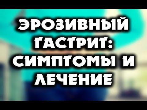 lehetnek- e az embernek parazitái)