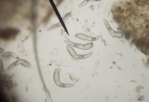 paraziták az emberi combban