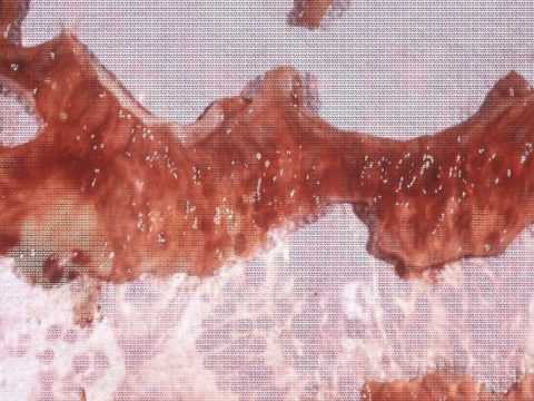 gyógyszer ascaris és pinworm ellen ami miatt rossz a lehelet