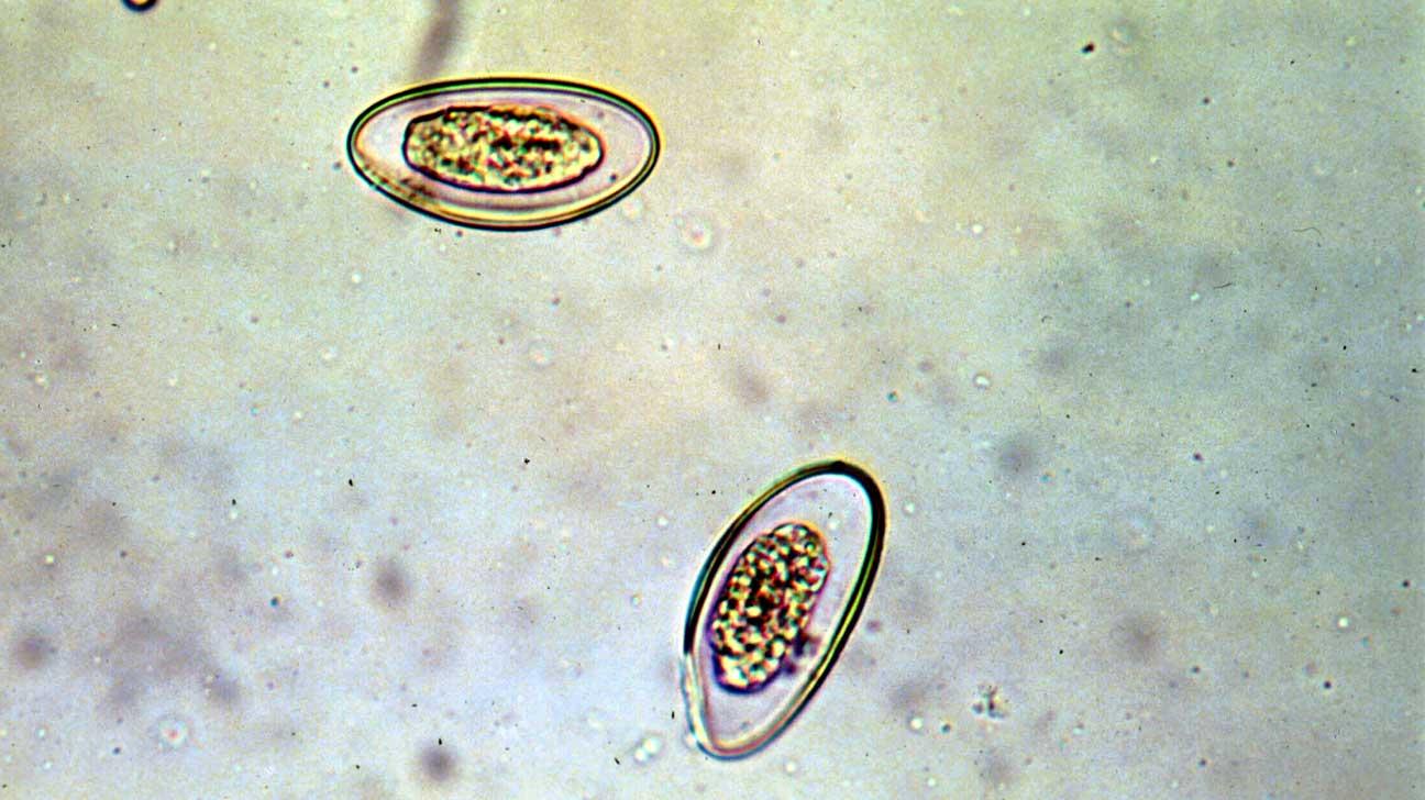 pinworms és vulvovaginitis)