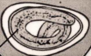 Pinworm lokalizáció a testben. Gomba parazita - Baloldalszél lokalizáció