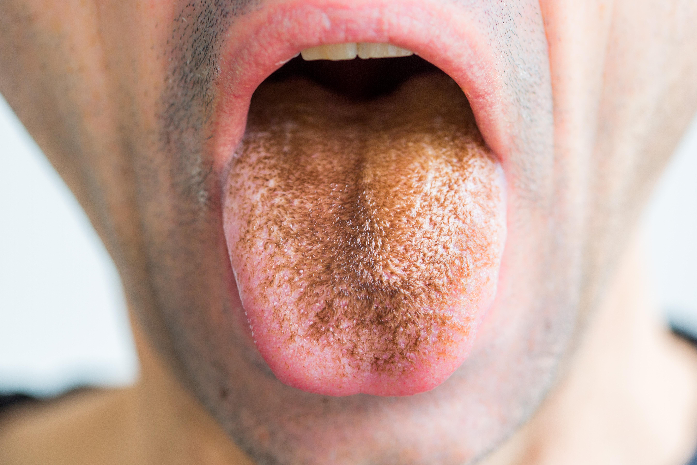 szürke nyelv és rossz lehelet