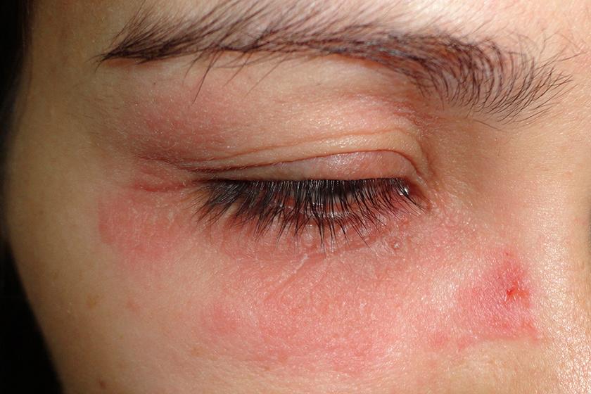 a szem körüli bőr paraziták