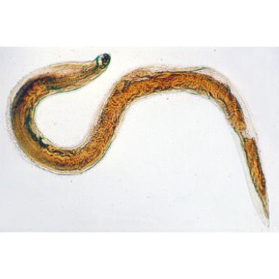 ascariasis parazitológia
