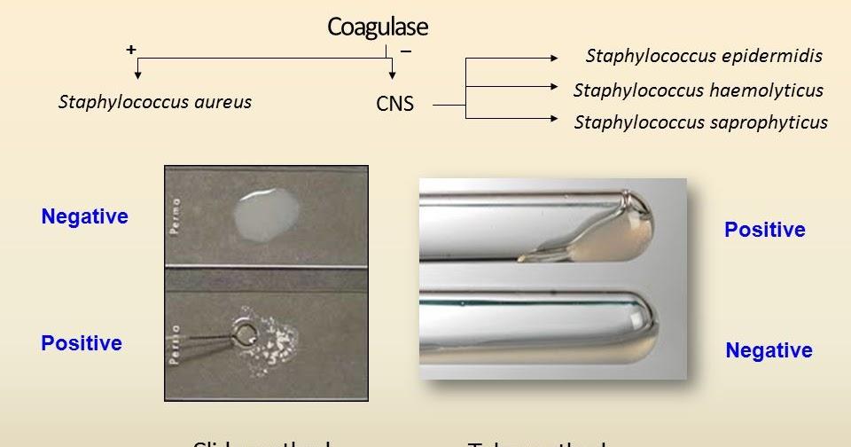 E. coli parazita