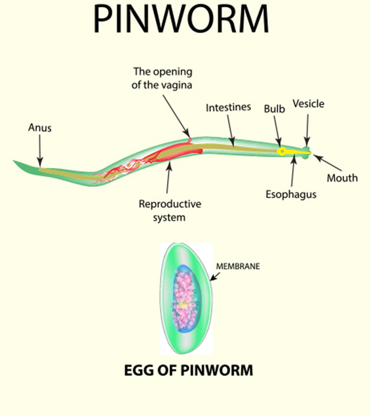 Enterobiasis recept. Hogyan kell kezelni pinworms - Diagnosztika March