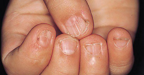 Strongyloidosis Thaiföld - Albendazol az opisthorchiasis kezelésében