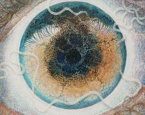 vörös szem paraziták