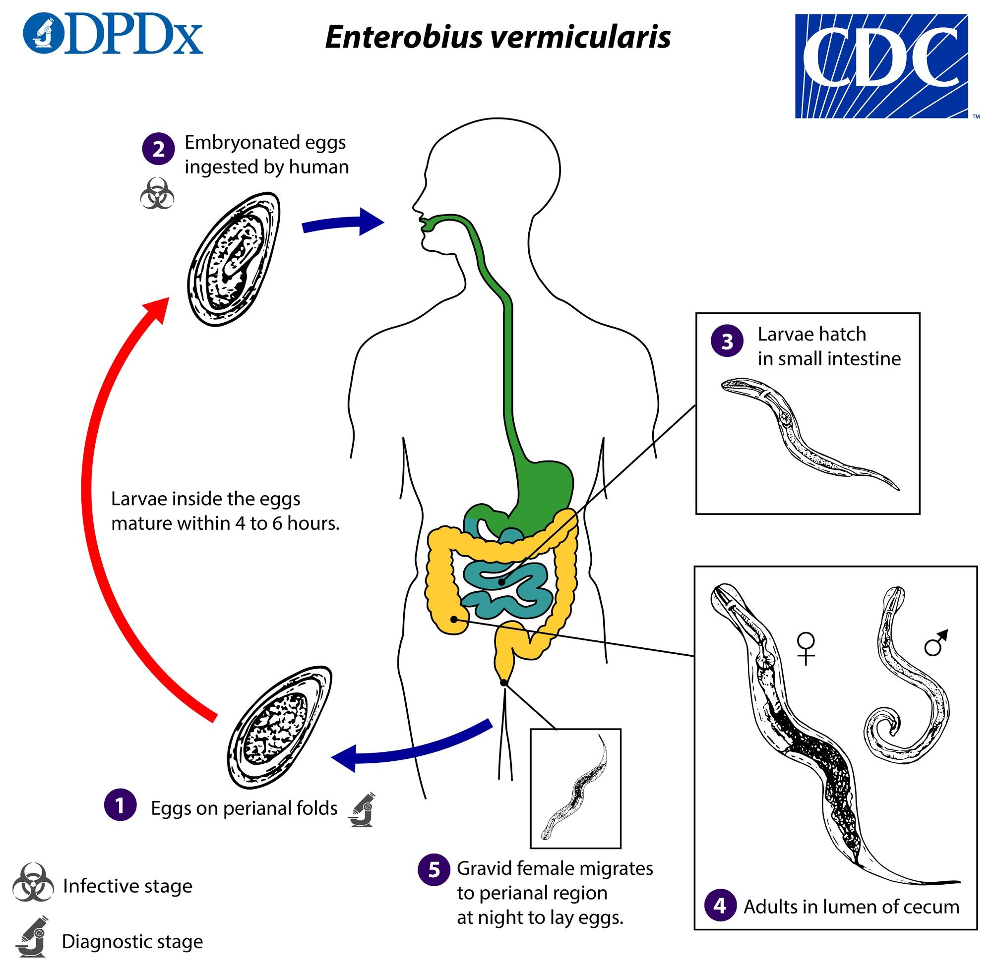 Pinworm az emberi belekben