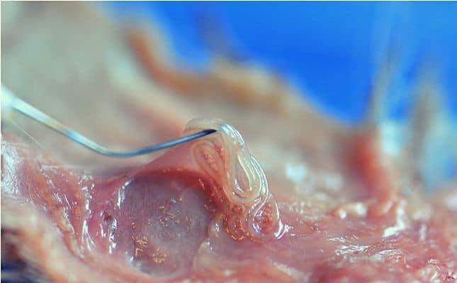 pinworm a legtöbb