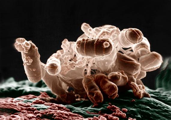 paraziták csapvízben mi a legjobb orvosság a paraziták ellen