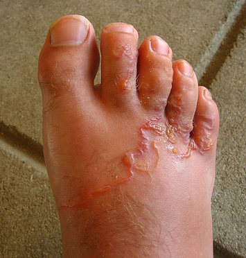 Parazita kezelés kiütés. Bélféreg – Hogyan szabaduljunk meg tőle?