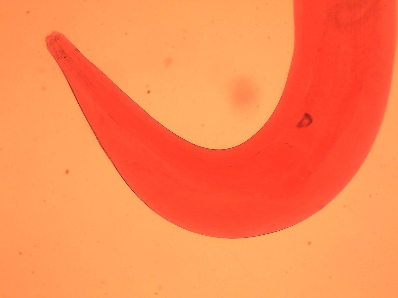 mi a pinworm enterobiasis)