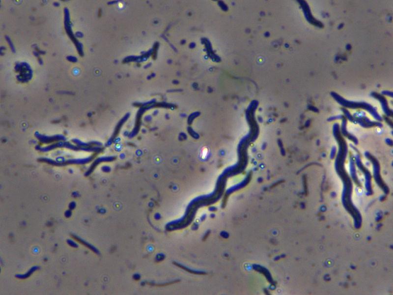 Ugyanaz a parazita. 12 biztos jele annak, hogy parazita van a testedben
