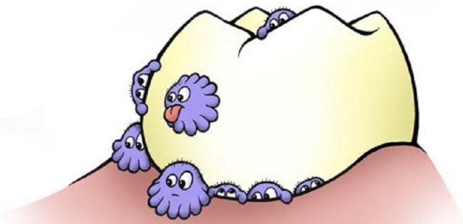 Mik lehetnek a rossz szájszag okai? Hogyan előzhető meg?
