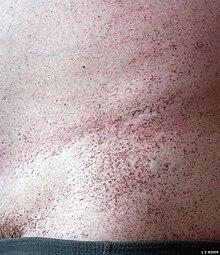 Loeffler- szindróma ascariasissal)