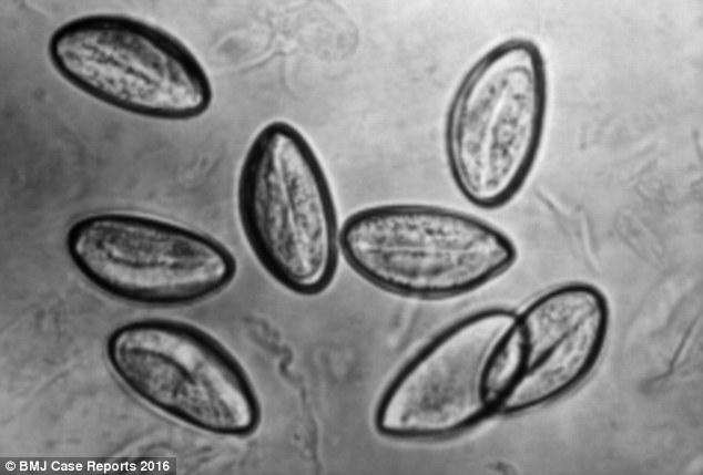 pinworms ascaris ellen okozhat rossz leheletet evés előtt