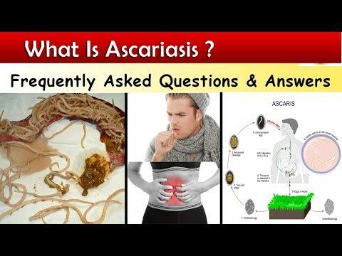 ascariasis átvitel