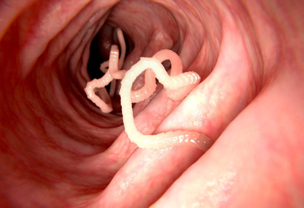 milyen paraziták a dirofilariasis)