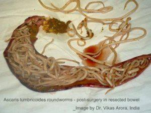 parazita ascariasis