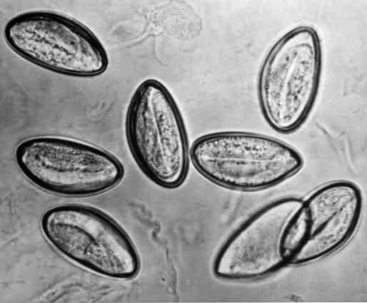 parazita a nyelőcsőben a pinworm jobban segít