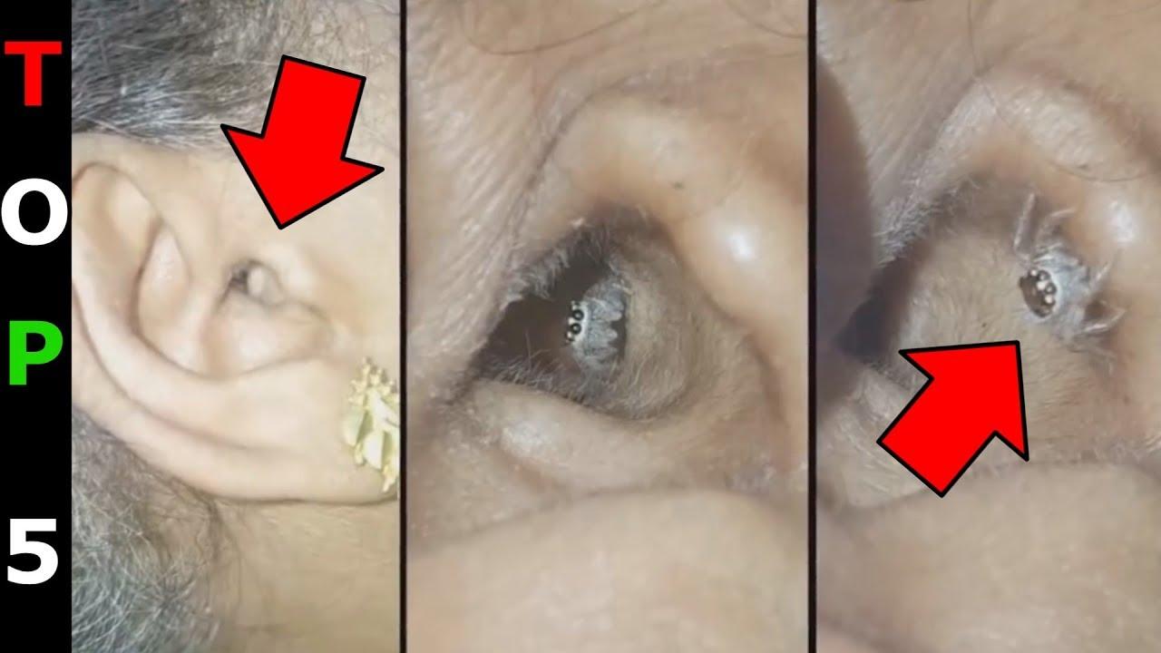 Hogyan lehet azonosítani a szalagféreget az emberekben Enterobiosis fertőzés