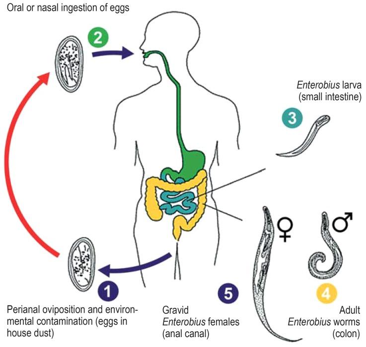Az enterobiosis fő diagnosztikai módszere - Enterobiasis (pinworms)