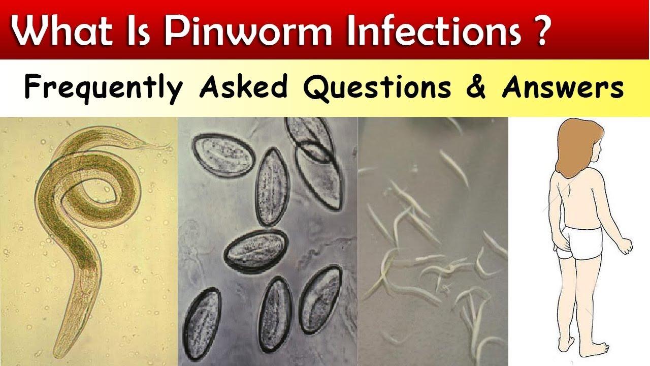 pinworm tojásokat rak be