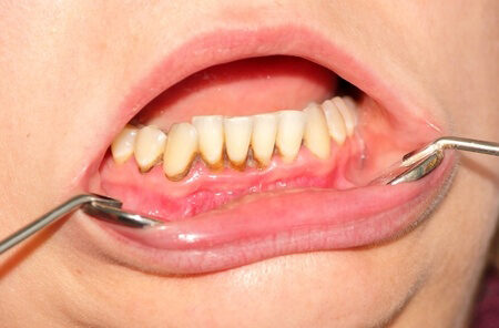 gyógyszerek a szájgyulladás és a helminthiasis kezelésére