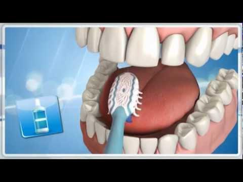 Rossz lehelet, szájszag lehetséges okai kezelés | Gombosdent
