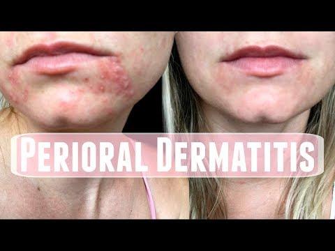 dermatitis helminták