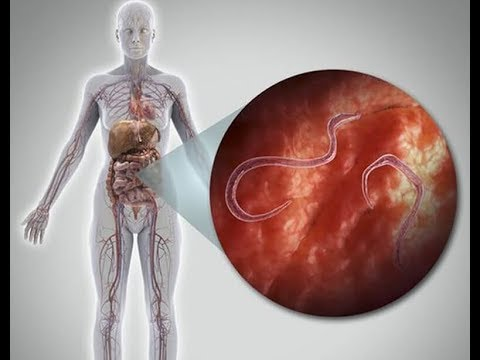 A paraziták pszichoszomatikája a testben