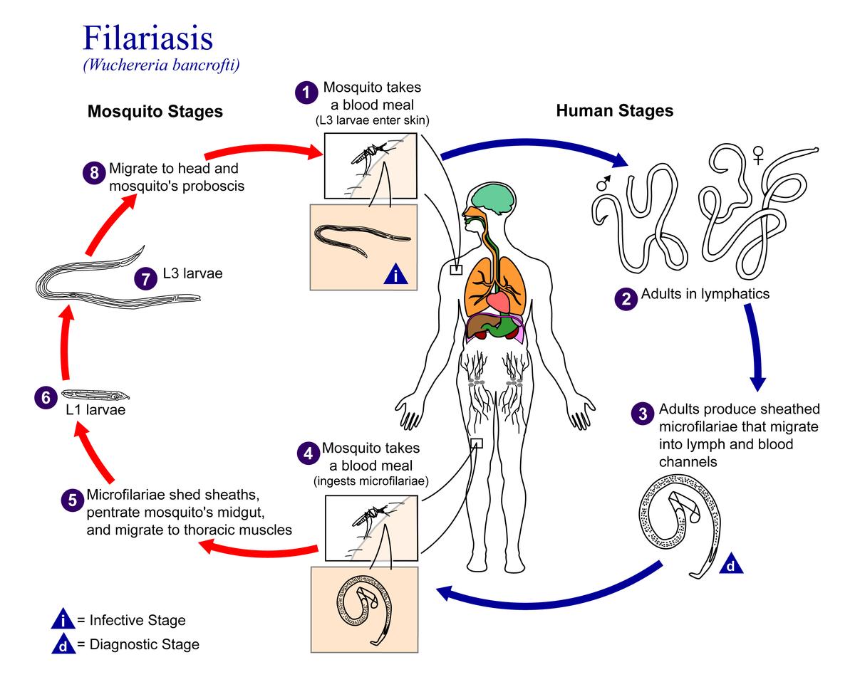 Elephantiasis parazita. Emberi bőrben burjánzó paraziták