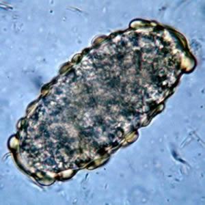 mikor kell drogot szedni az ascaris miatt gyógymód a belső paraziták ellen
