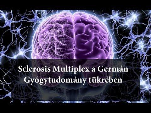 paraziták sclerosis multiplexben