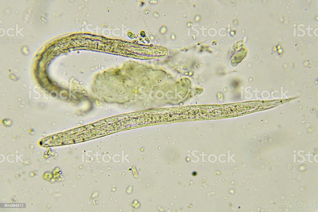 a pinwormok és a roundworms közötti különbség)
