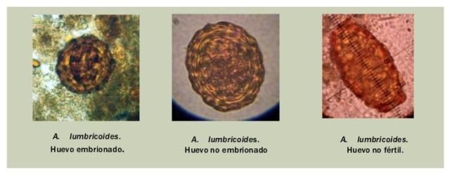 ascariasis morfológia nevezze meg a kerekférgekkel való emberi fertőzés módjait