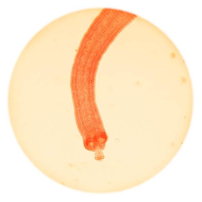 emberi féregparazita