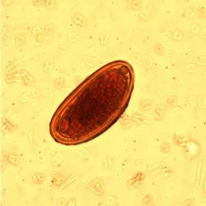 a pinworm tojások enterobiasis)