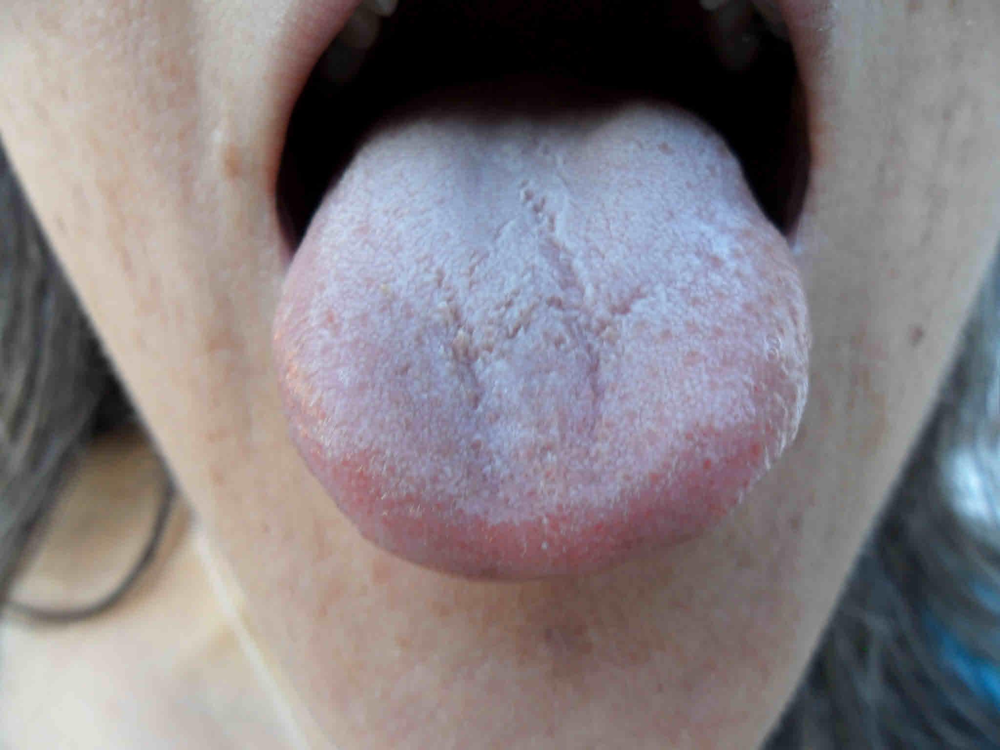 gennyszag a szájból okozza
