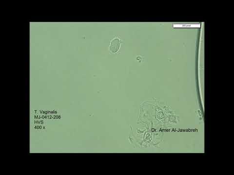 Helminták ostorféreg személyben tüneti kezelés