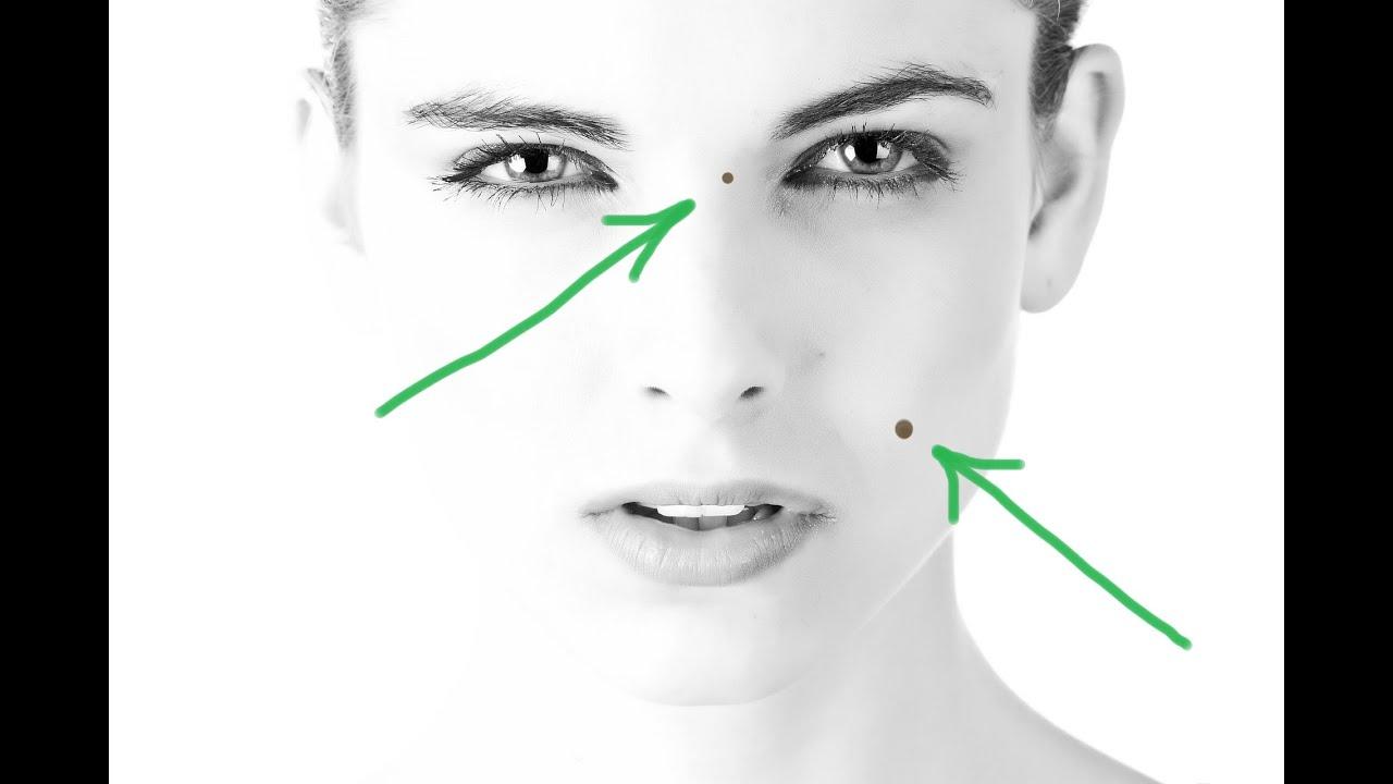 A körférgek kialakulásának egyik típusa. Fonálférgek (gömbférgek) A felnőtt gömbférgek kezelése