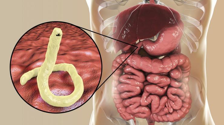 pinworm veszély áttekinti a cég parazita pro