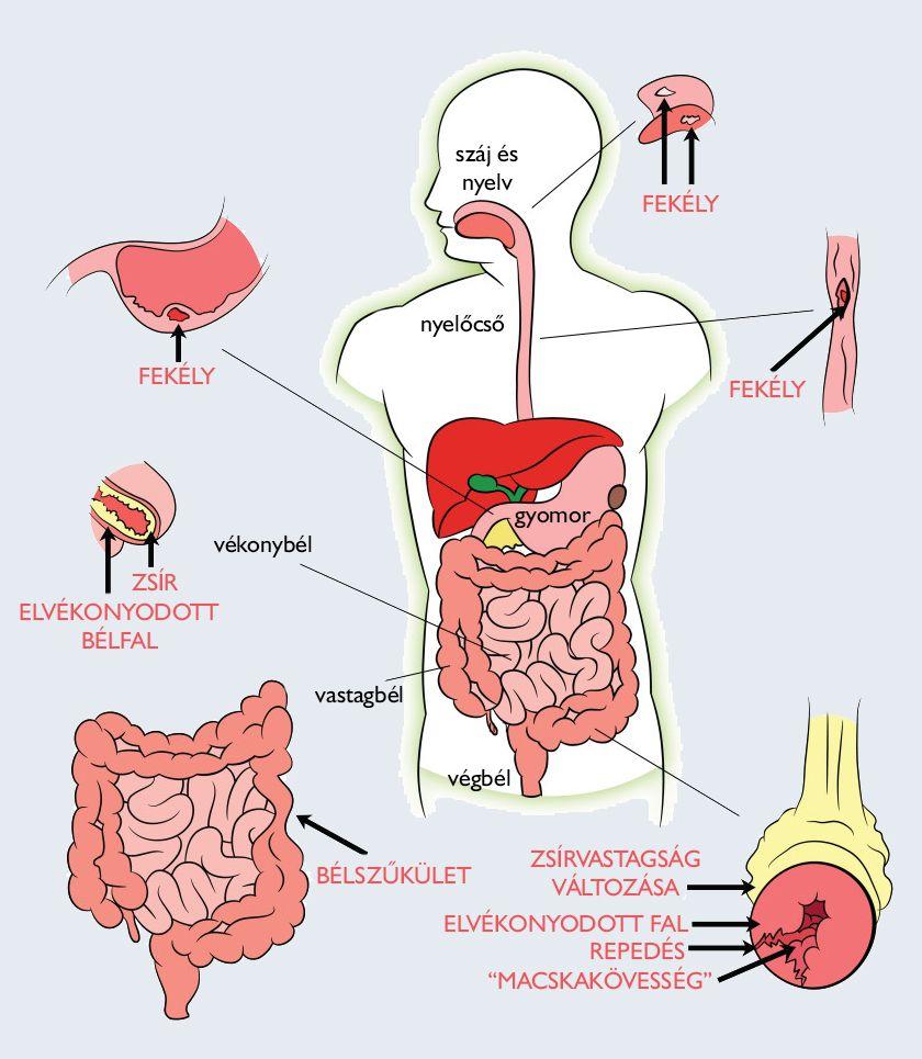 paraziták az emberi testben a küzdelem módszereiben milyen paraziták jelentek meg a testben