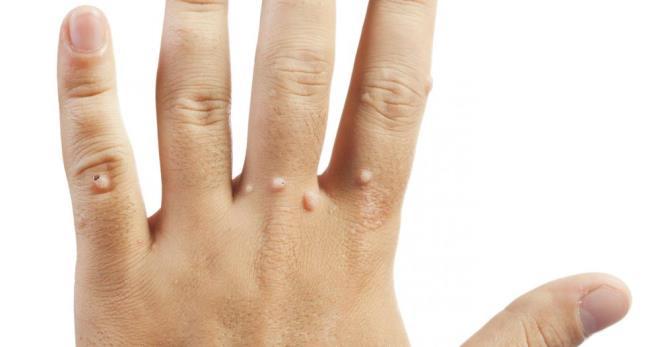 szemölcsök jelennek meg a kezeken, okai és kezelése