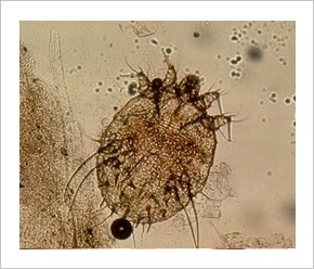 paraziták viszkető járat megtermékenyített petesejt