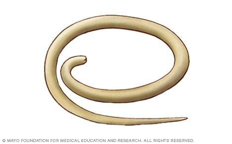 pinworm az virágparaziták hogyan lehet megszabadulni