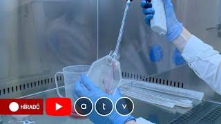 Giardia tisztító - egry-keszthely.hu, Nicholas központ parazita tisztítása