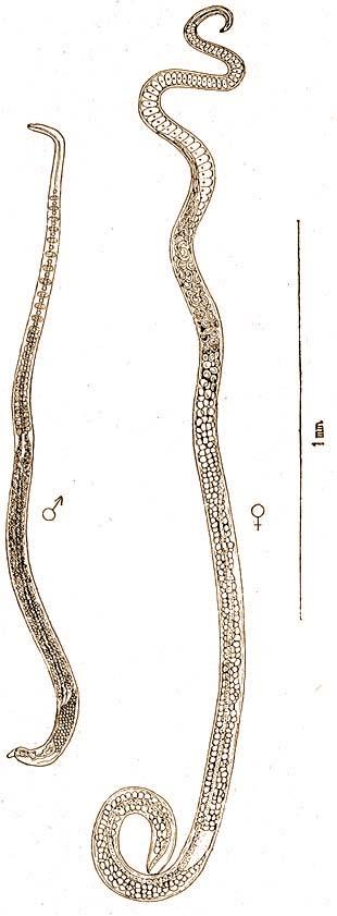 A körférgek kialakulásának egyik típusa. Fonálférgek (gömbférgek) - A körömféreg tagolt testű