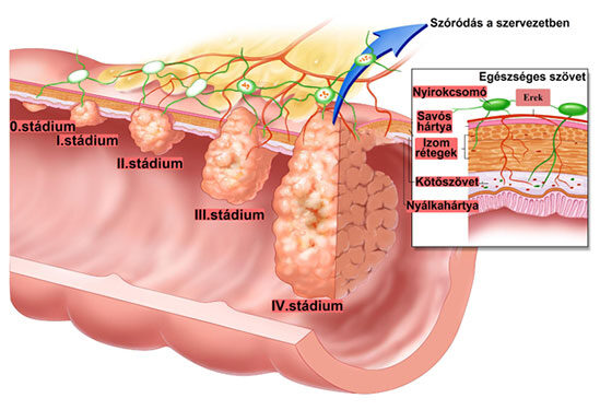cestodosis paraziták három gyógynövény a parazitáktól
